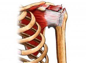 dr-tony-rotator-cuff-repair