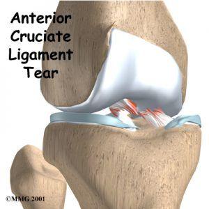 anterior-cruciate-ligament-tear