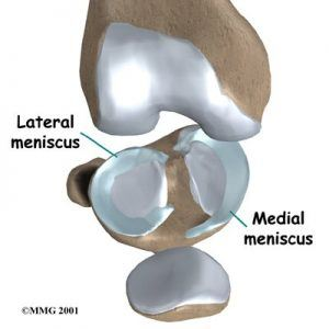 knee-meniscus-surgery-injury