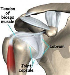 labral-tear-shoulder-injury