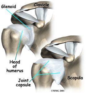 shoulder-arthroplasty-injury