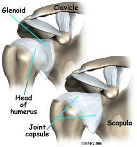 shoulder-arthroplasty-injury