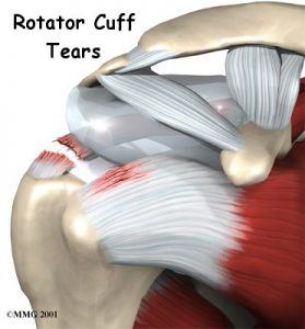 shoulder-rotator-cuff-tear