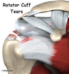 shoulder-rotator-cuff-tear